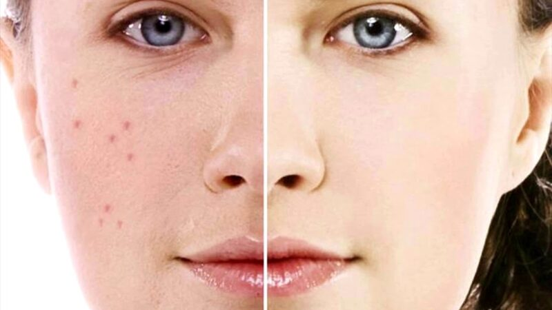 8 Perfect Level Ayurvedic Herbs and Home Remedies for Pimples Treatment To Make Your Face Beautiful